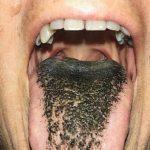 """Un extraño trastorno médico le da una apariencia """"peluda"""" a la lengua"""
