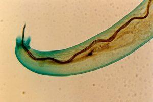 Gusano parasitario que se aloja en el cerebro