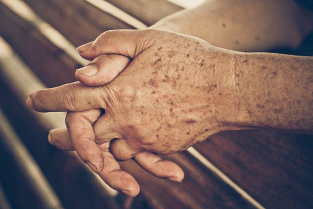 manos con manchas