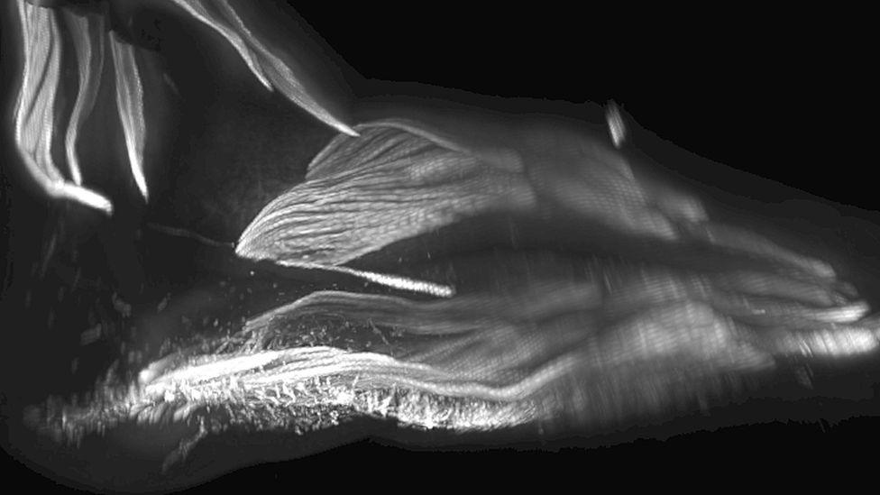 Una exploración 3D de los músculos del pie de un bebé.