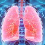 Radiografía que muestra los pulmones de color rojo