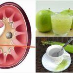 eliminar las piedras en el riñón