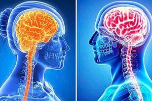 cerebro femenino