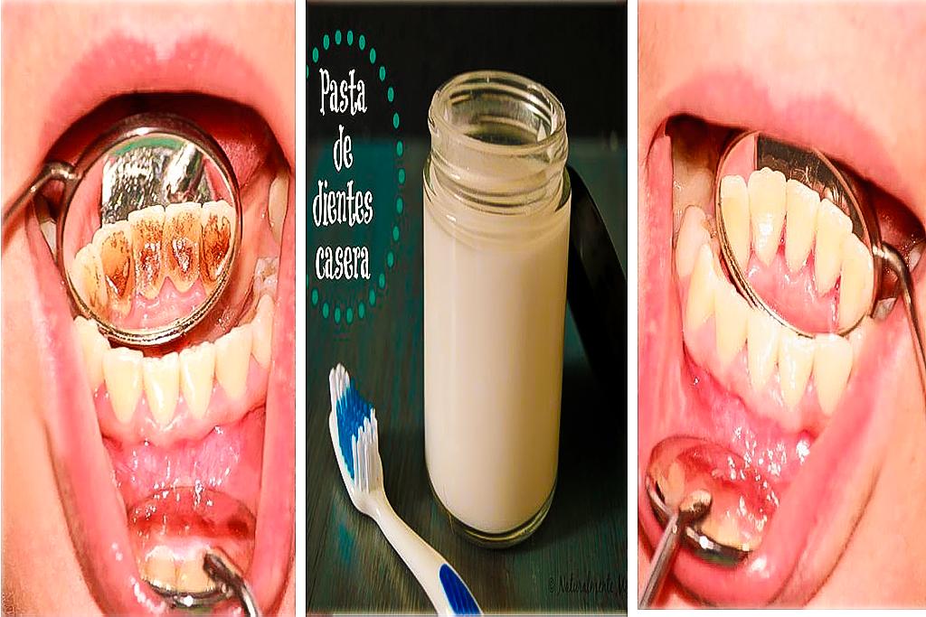 elimna las placas oscuras de los dientes