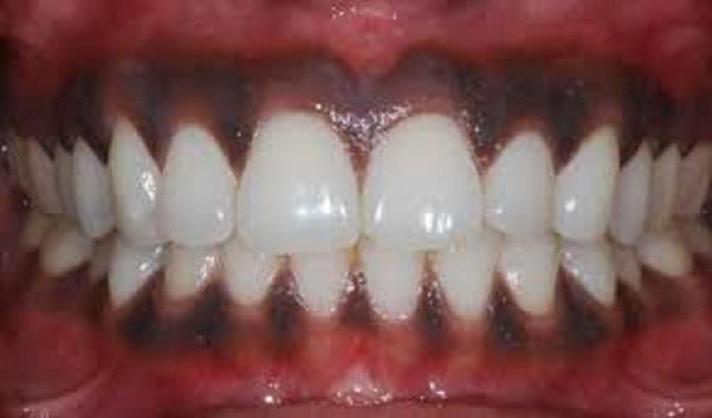 placas oscuras de los dientes