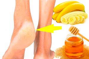 Eficiente y rápido remedios para acabar con los talones agrietados