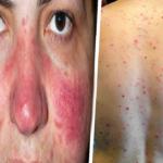 Enfermedades piel