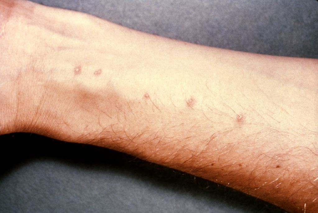 Esquistosomiasis