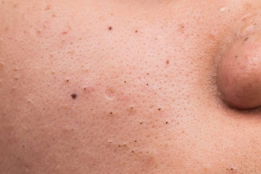 retirar el maquillaje antes de dormir 4