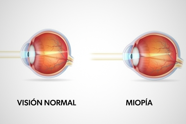 Cómo se cura la miopía 2