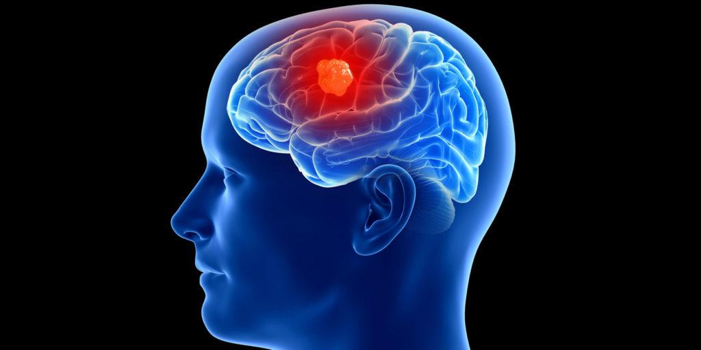 cerebro humano 2