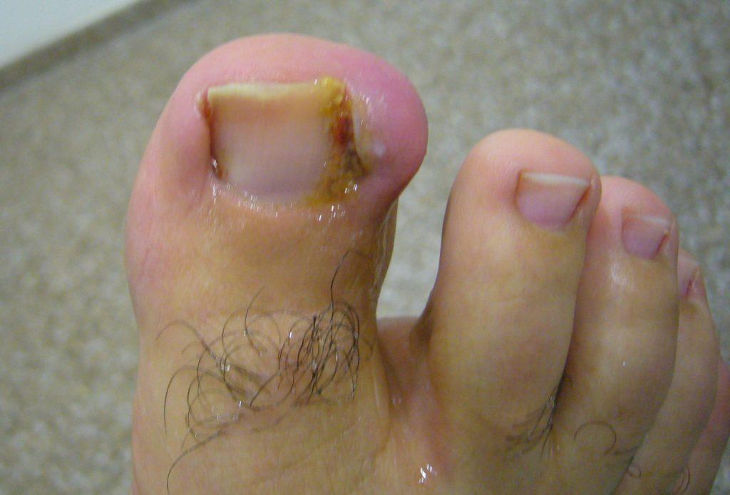 Enfermedades peligrosas para las uñas   3