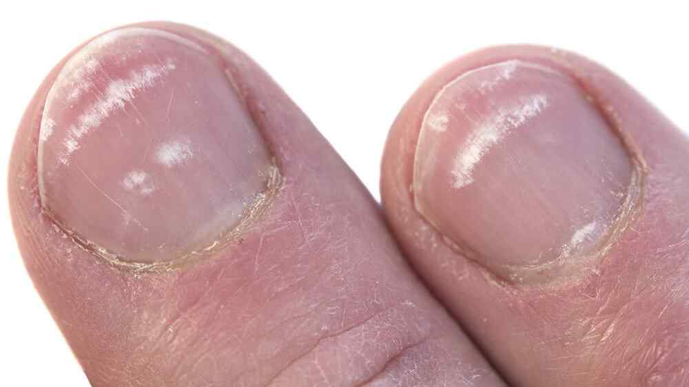 Enfermedades peligrosas para las uñas   2