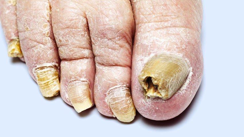 Enfermedades peligrosas para las uñas   4