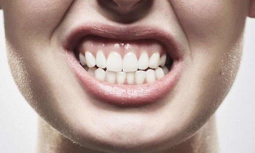 Por qué rechinamos los dientes 3