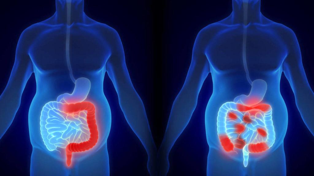 Qué sucede en los intestinos 3