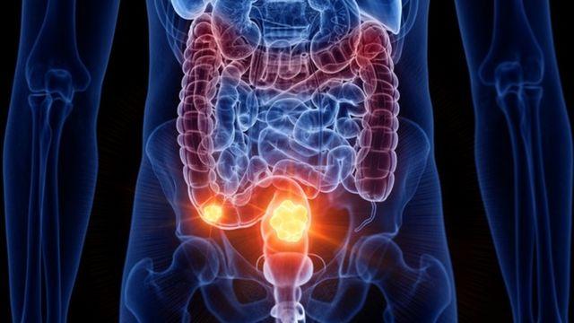 Qué sucede en los intestinos