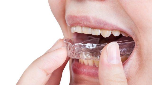 Por qué rechinamos los dientes 2