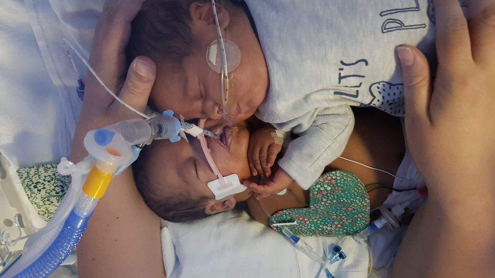 bebé sano al lado de su gemelo moribundo